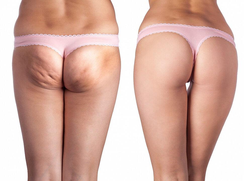 cellulit przed i po